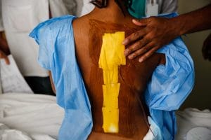 Scoliosis Charity República Dominicana